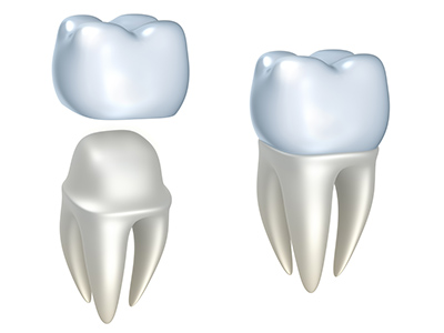 Rendering of teeth with dental crown from Gregory J. Gorman, DMD in Grand Junction, CO