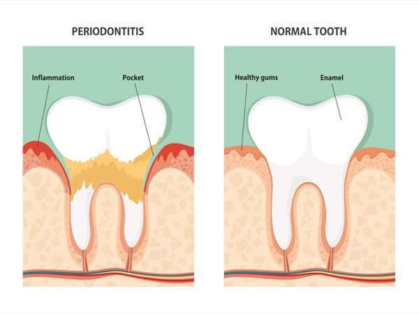 Diagram of periodontitis and health tooth.