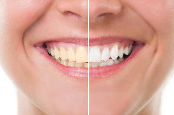 Before and after photo of teeth whitening treatment at Gregory J. Gorman, DMD in Grand Junction, CO.